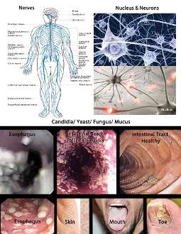 Nerves and Candida
